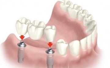implantes-dentales-2