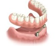 implantes-dentales-3b