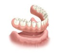 implantes-dentales-3c